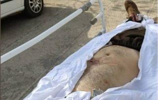 عکس از جسد امید خضری